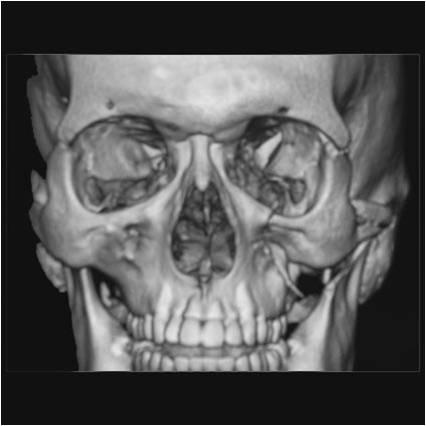 図1.左頬骨骨折の例