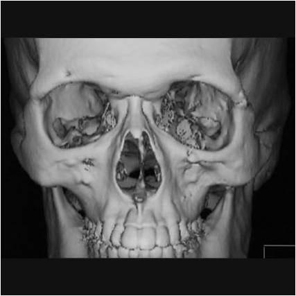 図2.頬骨骨折治療後のCT