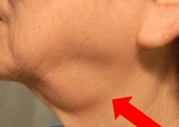 図1.唾液腺の腫れ