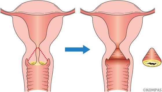 子宮頸部円錐切除術