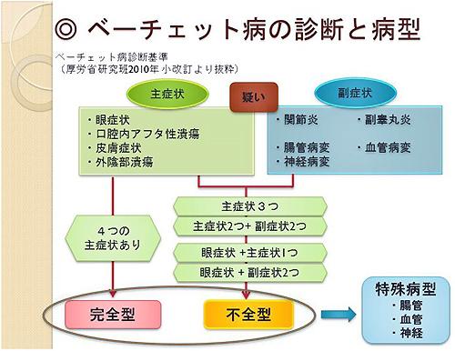 図2 ベーチェット病の診断と病型