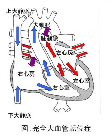 完全大血管転位症