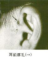 耳前瘻孔(→)