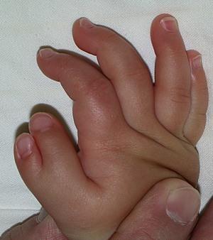 図1.おやゆびの多指症