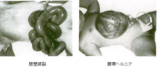 腹壁破裂 臍帯ヘルニア