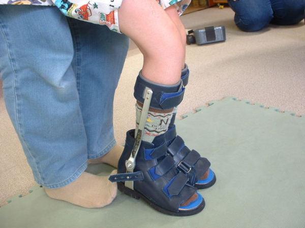 図1.下肢装具の例(金属支柱付き短下肢装具)