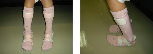 図2.下肢装具の例(プラスチック短下肢装具)