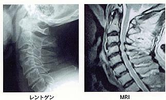 図1.変形性頸椎症