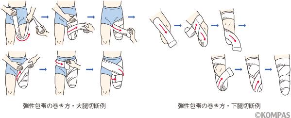 図1.弾性包帯の巻き方