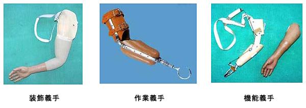 「腕 断端」の画像検索結果