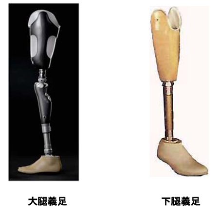 図3.義足の種類