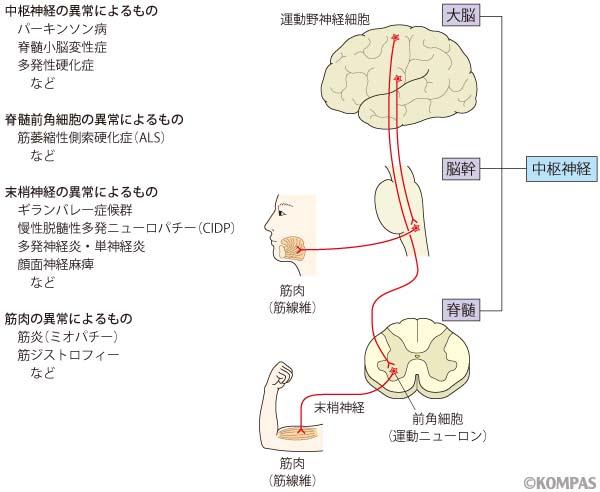 神経・筋疾患のリハビリテーショ...