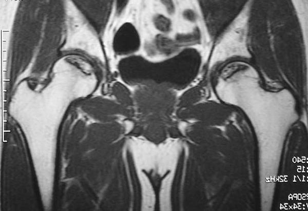 図2 MRI(T1強調冠状断像)