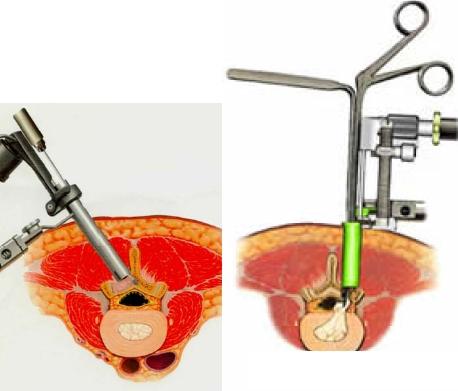 図1.内視鏡下ヘルニア摘出術における内視鏡椎間板切除イメージ図