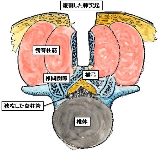 図1.腰椎棘突起縦割式椎弓切除術