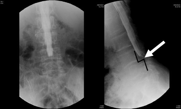 図2.後方進入椎体間固定術PLIF(TLIF)前(階段状に背骨がずれている:矢印)