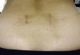 図2.傷は両サイドに縦に約3cmと小さな切開におさえられる。