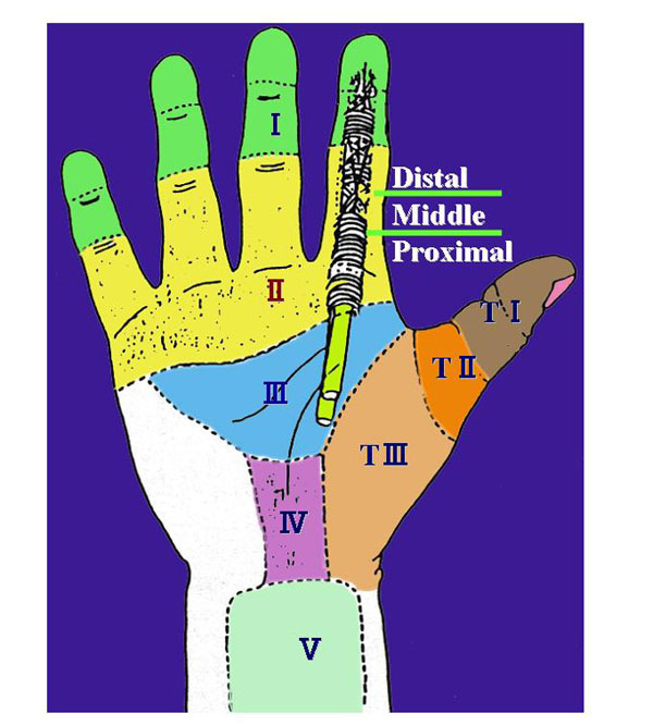 図1.屈筋腱損傷のZone分類