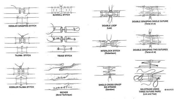 図3.様々な腱縫合法