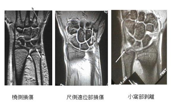 図1.代表的なTFCC損傷のMRI