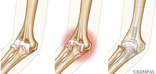 図1.左:正常の肘関節 中央:関節軟骨が変性した変形性肘関節症 右:人工肘関節置換術