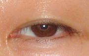 軽い眼瞼下垂
