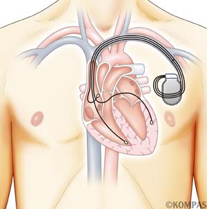 心室ペースメーカー療法