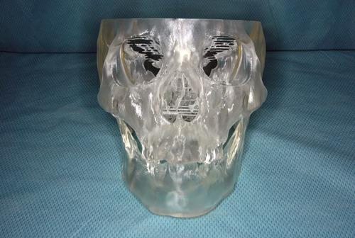 図2.光造形骨立体モデル
