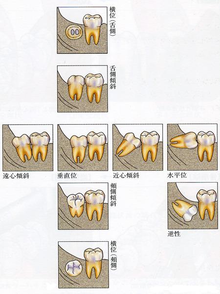図. 埋伏智歯の分類