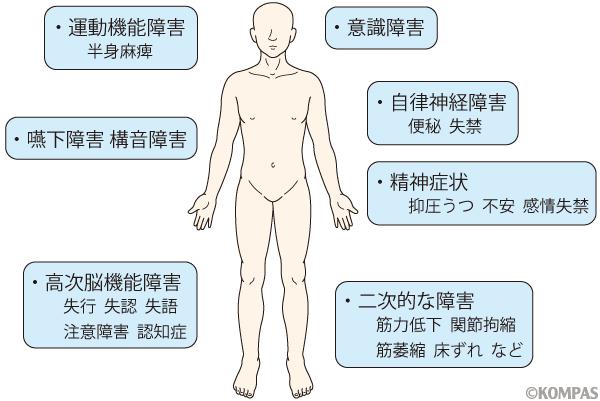 図1. 脳卒中の主な障害