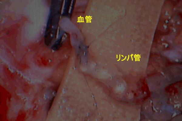 図5.吻合中の所見