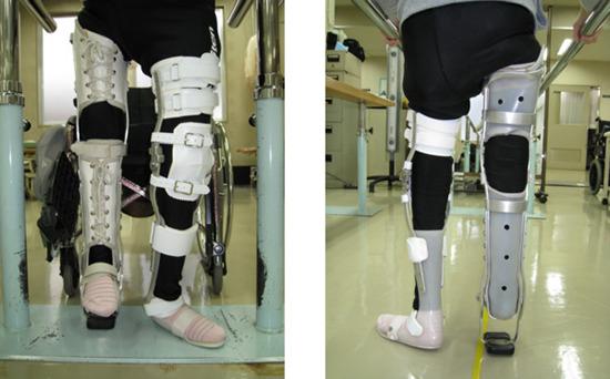 写真3.長下肢装具(右側は免荷装具)