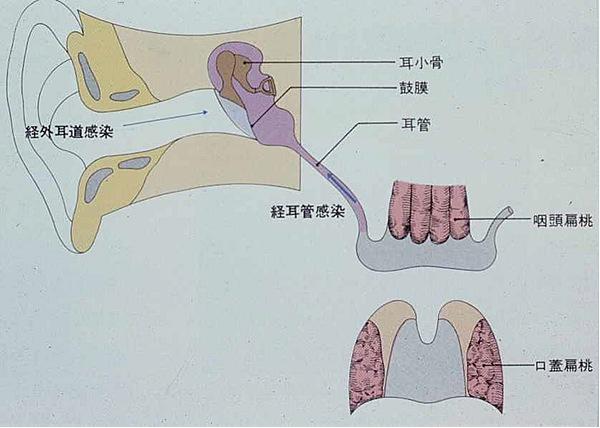 図1.急性中耳炎の原因
