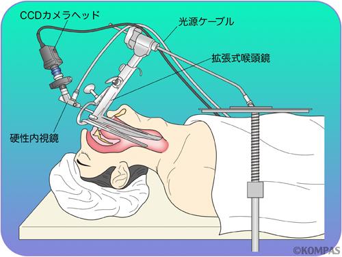 図5.拡張式喉頭鏡+硬性内視鏡による直達的経口手術(概観)