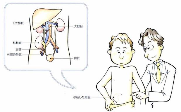図 慶應義塾大学病院 腎移植パンフレット いのちときずな より