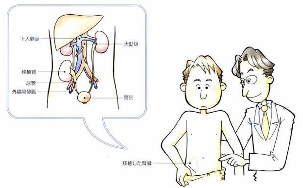 腎移植|KOMPAS