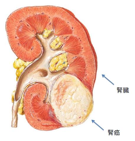 腎細胞癌 - JapaneseClass.jp