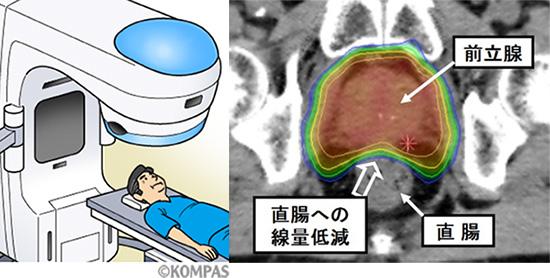 図2.前立腺がんに対する外部照射