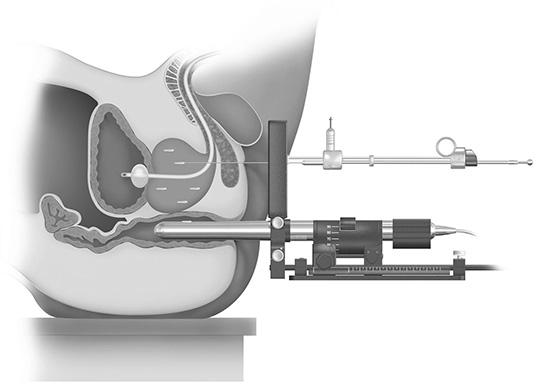 図3.前立腺がんに対する密封小線源療法