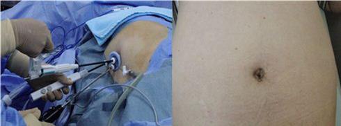 図2.左:単孔式手術(臍からのアプローチ) 右:副腎摘出術後の臍の様子(傷がない。)