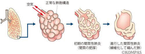 急性 肺炎 と は