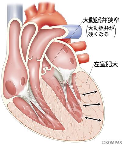 大動脈狭窄症