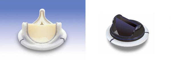 図2 生体弁(左)、機械弁(右)