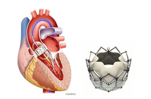 図3 経カテーテル大動脈弁留置術(TAVI)