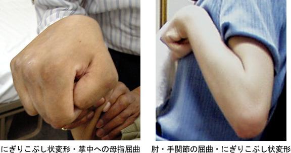 写真1 痙縮による症状(上肢)