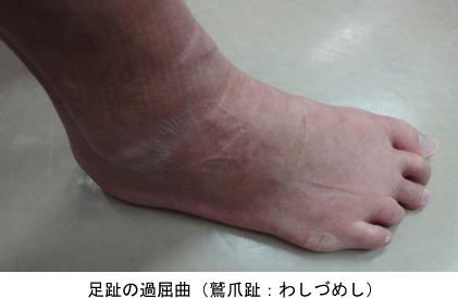 足趾の過屈曲(鷲爪趾:わしづめし)