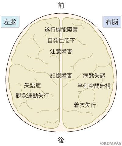 図1. 高次脳機能障害とその起こりやすい損傷部位