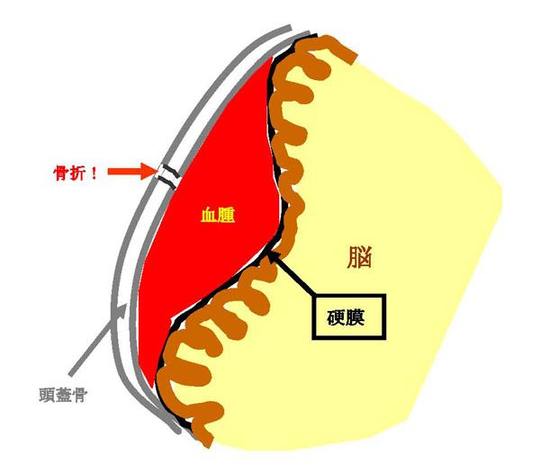 図1.硬膜外血腫