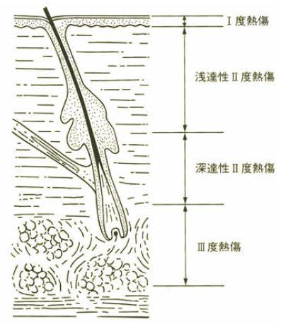 (熱傷用語集2015改訂版(一般社団法人日本熱傷学会.2015)p.51の図を引用