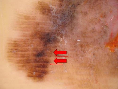 図2.悪性黒色腫のダーモスコピー